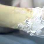 Material que puede regenerar los huesos o tejido óseo/Youtube