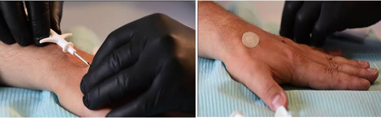 El chip integrado bajo su piel permitirá  interactuar con dispositivos conectados a corta distancia. Créditos:AFP