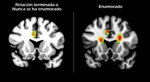 Escáner que compara un cerebro enamorado y uno que no lo está. Créditos: Universidad de Ciencia y Tecnología de China