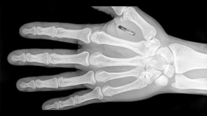 Cerca de 10 mil personas en el mundo viven con estos implantes, que les permiten interactuar con objetos conectados. Créditos: AFP