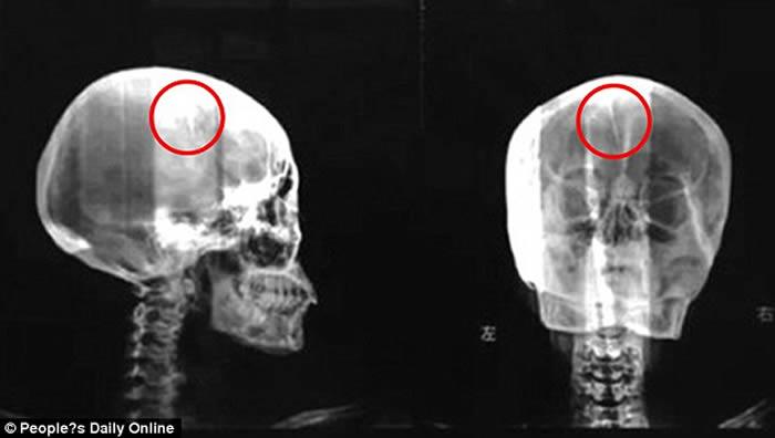 Al examinar mediante rayos X encontraron una aguja de 1,8 pulgadas en la cabeza de la Sra Liu. Créditos: People's Daily online.