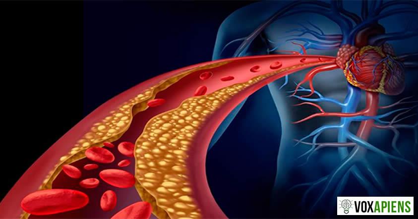 Alimentos para limpiar las arterias